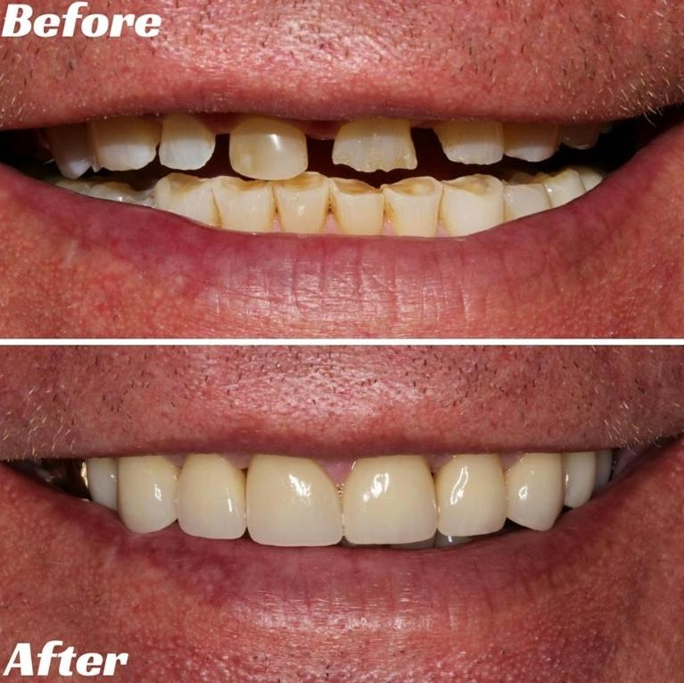 smoker teeth before and after wwwimgkidcom the image