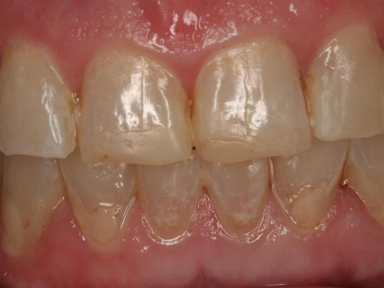 Smile-improvement-with-whitening-trays-and-esthetic-crowns-Before-Image