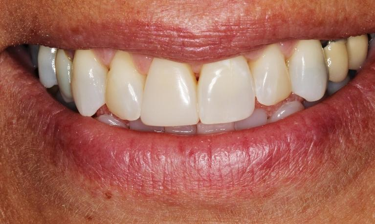 Bleaching-and-bonding-change-patient-s-smile-After-Image
