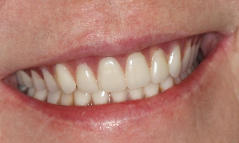 Services Complete Amp Partial Dentures Dr Christopher