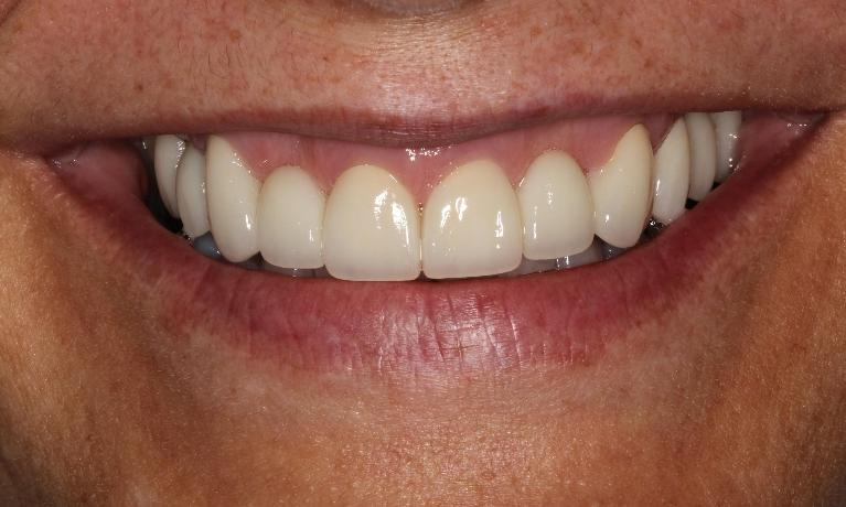 Cosmetic-Dentistry-with-Bridges-Crowns-and-Implant-After-Image