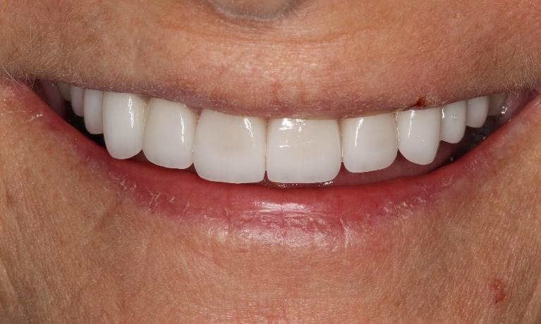 Cosmetic-Dentistry-with-Crowns-and-Veneers-After-Image