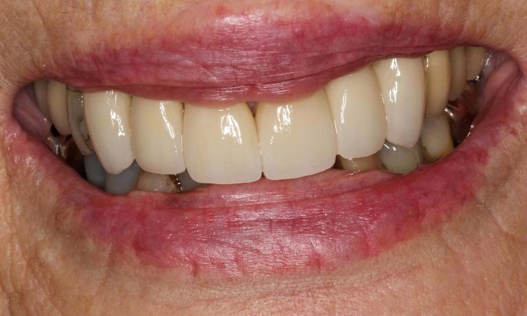 Crowns-improve-patient-s-smile-After-Image