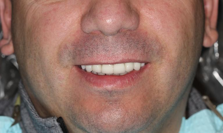 Cosmetic-Dentistry-with-Crowns-Bridges-Veneers-and-an-Implant-After-Image