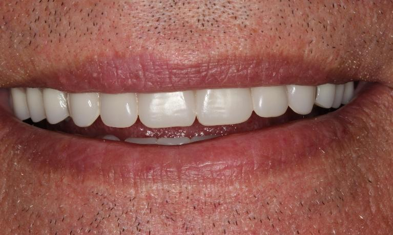 Dentures-revive-patient-s-smile-After-Image