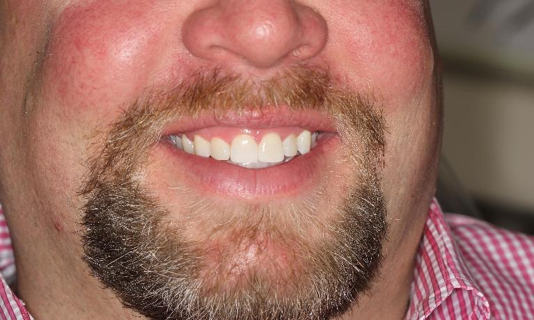 Invisalign-and-Whitening-After-Image