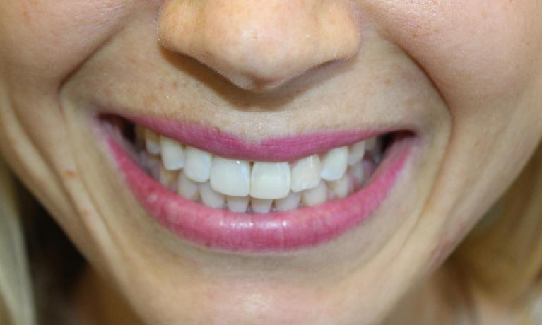 Patient-has-her-front-tooth-replaced-naturally-with-a-dental-implant-After-Image