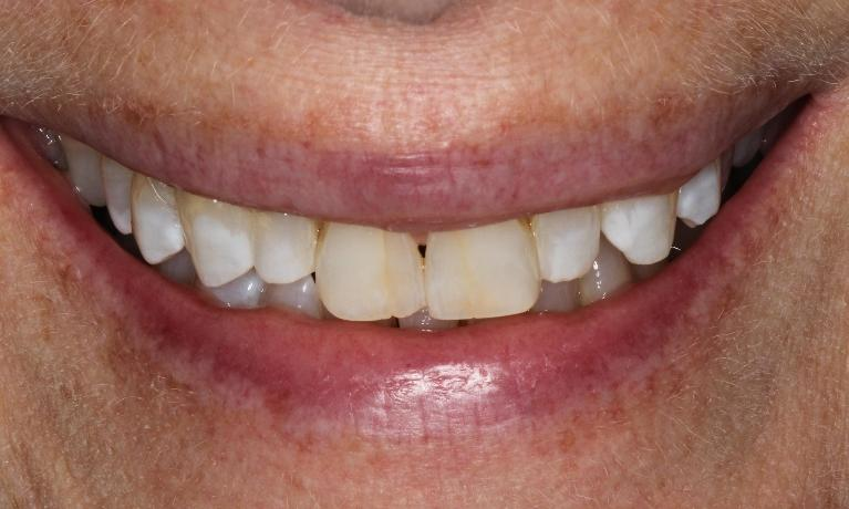 Whiter-teeth-in-4-short-weeks-with-office-made-bleaching-trays-After-Image