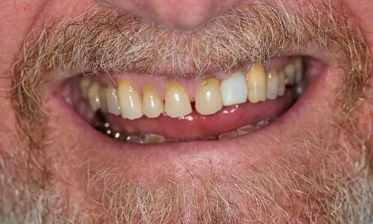 Dental-Implant-and-Crowns-Before-Image