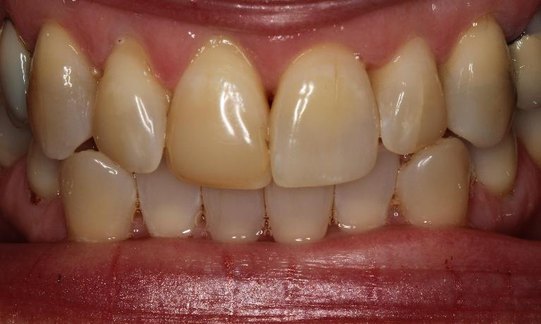 Bleaching-and-bonding-change-patient-s-smile-Before-Image