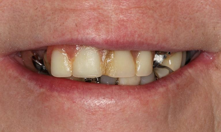 Complete-Dentures-Change-Patient-s-Life-Before-Image