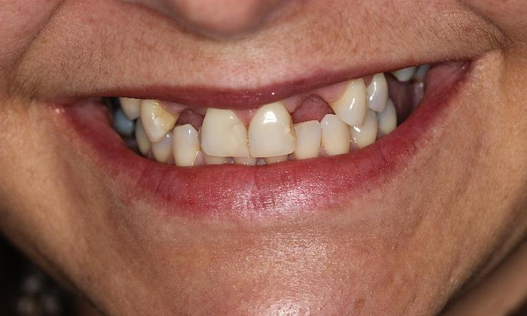 Cosmetic-Dentistry-with-Bridges-Crowns-and-Implant-Before-Image