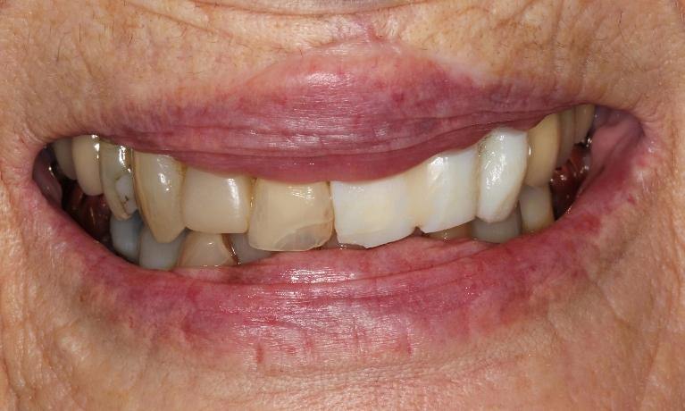 Crowns-improve-patient-s-smile-Before-Image