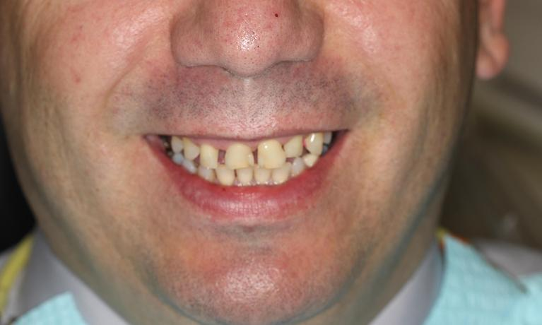 Cosmetic-Dentistry-with-Crowns-Bridges-Veneers-and-an-Implant-Before-Image