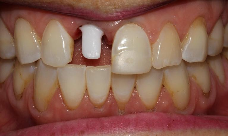 Patient-has-her-front-tooth-replaced-naturally-with-a-dental-implant-Before-Image