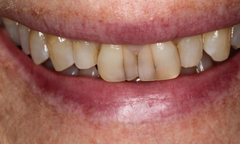 Whiter-teeth-in-4-short-weeks-with-office-made-bleaching-trays-Before-Image