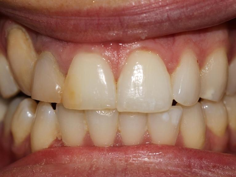 Bonding-veneer-and-a-crown-for-increased-confidence-in-this-patient-s-smile-Before-Image