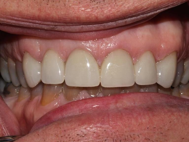 Two-visit-smile-improvement-with-esthetic-crowns-After-Image