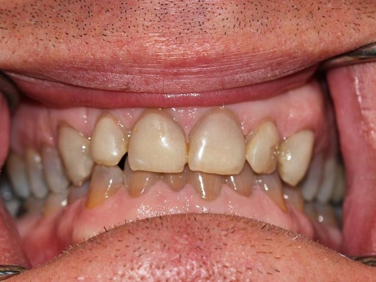 Two-visit-smile-improvement-with-esthetic-crowns-Before-Image