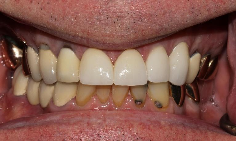 Rapid-smile-and-function-improvement-with-crowns-and-a-bridge-After-Image