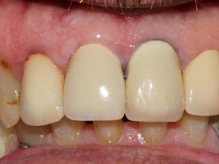 Restorative-Dentistry-After-Image