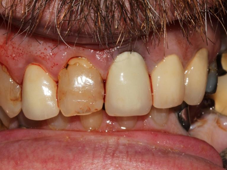 Preventive-dentistry-and-single-crown-significantly-improves-the-look-of-this-patient-s-teeth-Before-Image