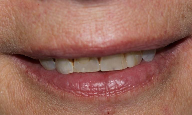 6-esthetic-crowns-transformed-this-patient-s-smile-Before-Image