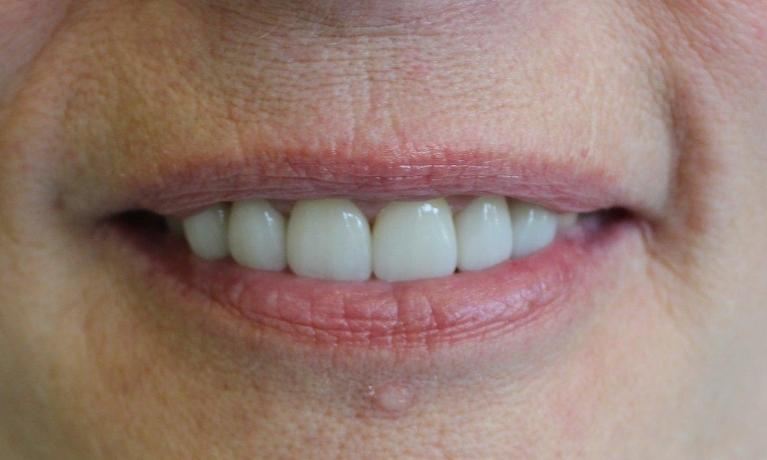 6-esthetic-crowns-transformed-this-patient-s-smile-After-Image